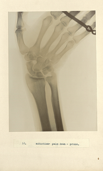 X-ray of a wrist