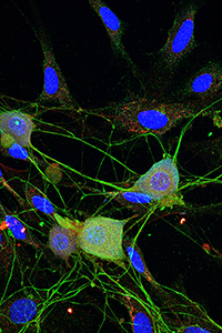 cultured-DRG-neurons.