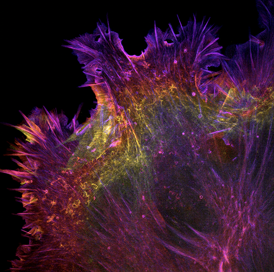 fluorescent proteins used to light up the cytoskeleton of a cell