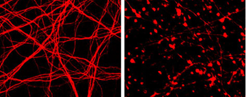 At left, a normal neuron. At right, neuron death induced by Botulinum type C toxin. Botox is type A. Image: Dong Lab.