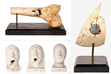 MUTE TESTIMONY: Objects associated with injuries acquired in violent acts include, clockwise, from top left, a femur with a bullet lodged in the diaphysis (willed to the Boston Society of Natural History by Jeffries Wyman, Class of 1837); a skull fragment from a Civil War veteran, with bullet embedded; and a set of three facial moulages, made during World War I by Varaztad Kazanjian, Class of 1921, showing the progress of reconstruction and recovery of a British soldier who lost his mandible in an explosion.</br>Facial moulages courtesy of the Harvard Medical Library at the Francis A. Countway Library of Medicine. Other items courtesy of the Warren Anatomical Museum at the Francis A. Countway Library of Medicine.</br>Photo credit: Paul Morrison