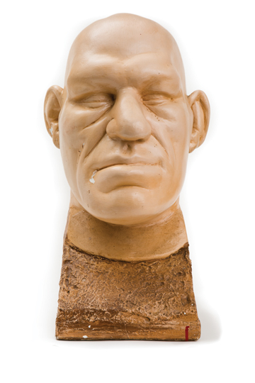 "ANGEL FACE: A death mask taken of Maurice Tillet, a professional wrestler of the late 1930s to early 1950s, who was known as ""The French Angel."" Tillet was remarkable for his large head and oversized facial features, symptoms of the hormone disorder acromegaly.<br/>Gift of Rosanna Meunier Leonard, Patrick J. Leonard, Sr., Patrick J. Leonard, Jr., and Mary K. Leonard of Braintree, Massachusetts, to the Warren Anatomical Museum. Photo: John Soares"