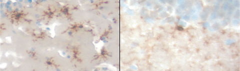 Microglia counter amyloid. In mice that produce human amyloid precursor protein, microglia (dark brown) infiltrate the brain (left). When the microglial chemokine receptor Ccr2 is ablated, cellular migration is blocked (right) and pathology is exacerbated. Courtesy Joseph El Khoury.