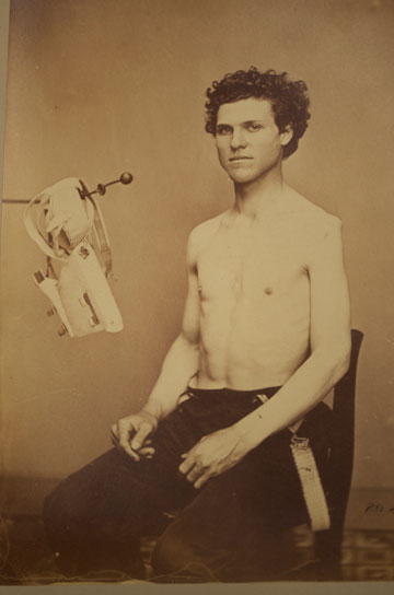 From the Civil War volume <em>Photographs of Surgical Case and Specimens</em>