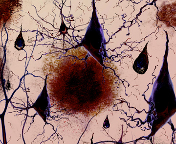 Neurons and tangles. Photo courtesy: National Institute on Aging