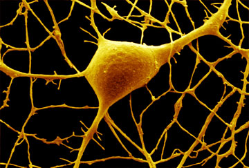 Purkinje nerve cell, DAVID MCCARTHY/SCIENCE PHOTO LIBRARY