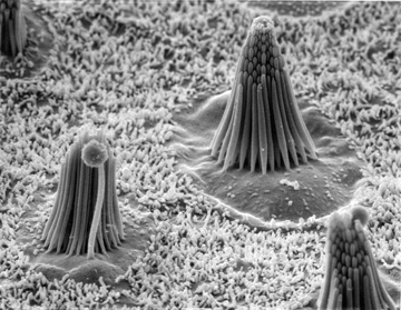 Inner ear hair cells, the very cells that convert a mechanical stimulus like sound or head movement into neural signals. Here you can see the mechanosensitive cilia bundles of three cells; the rest of each cell is below the visible surface. Image courtesy of Corey lab.