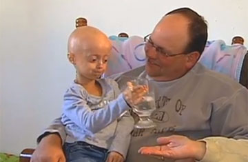 progeria research paper Maheetha bharadwaj retrieved from the progeria research foundation website: progeriaresearchfoundationorg table of contents introduction and history.