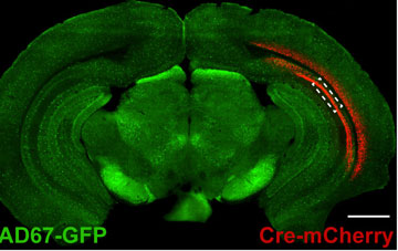 Image courtesy of Sabatini lab