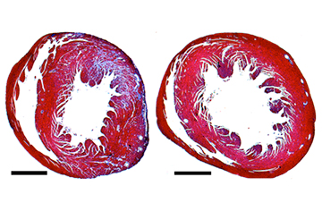 The heart of a mouse with untreated hypertrophic cardiomyopathy (left) has a thicker muscle wall and more scarring (blue) than one treated with RNAi (right). Image: Seidman lab