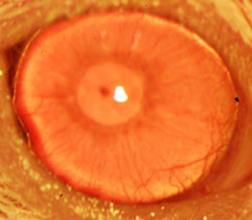 A restored functional cornea following transplantation of human ABCB5-positive limbal stem cells to limbal stem cell-deficient mice. Transplants consisting of human ABCB5-positive limbal stem cells resulted in restoration and long-term maintenance of a normal clear cornea, whereas control mice that received either no cells or ABCB5-negative cells failed to restore the cornea. Image: Kira Lathrop, Bruce Ksander, Markus Frank, and Natasha Frank.
