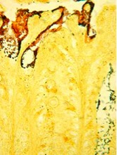 Citrobacter rodentium bacterial cells (reddish-brown) reside alongside commensal flora (black rods) in the colon. Image courtesy of Bry laboratory.