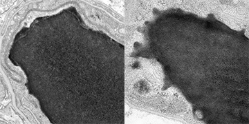 Electron microscopy showed that blood-brain barrier cells in mice lacking <i>Mfsd2a</i> (right) had much more vesicle activity than barrier cells of mice with the gene (left). Image: Gu Lab