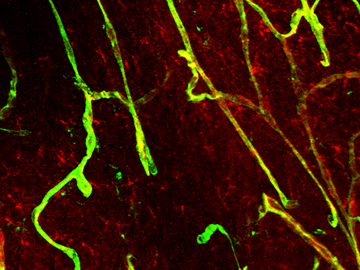 Tracer dye (red) leaked through capillaries (green) in the brains of mice that lacked the gene <i>Mfsd2a</i>, helping to reveal the gene's role in regulating blood-brain barrier permeability. Image: Gu Lab
