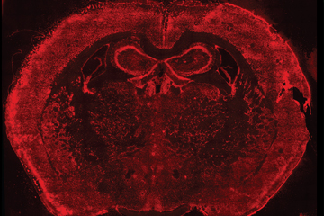 To develop fluorescent in situ sequencing, scientists first fix in place thousands of RNAs -- including working copies of genes called messenger RNAs -- in cells, tissues, organs or embryos. Here, RNAs are labeled red in a mouse brain. Image: HMS and Wyss.