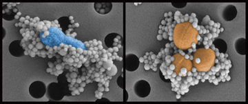 This image demonstrates the effectiveness of the genetically engineered protein-coated magnetic beads binding to pathogens.  Here, the magnetic beads (128 nm) are bound to two pathogens (E. coli on the left and S. aureus on the right). Image: Harvard's Wyss Institute