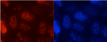 Immunofluorescence shows C. elegans eggs: DNA in blue and a previously unreported DNA modification where adenines are methylated in red. Image: David Aristizábal-Corrales