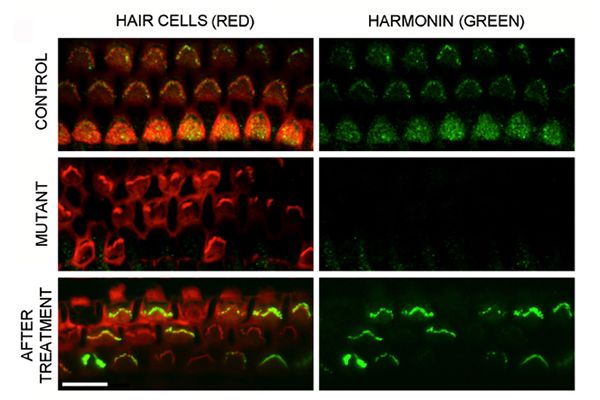 Top row: Healthy control mice have normal hair cells, stained red, that produce full-length harmonin protein, stained green. Middle row: Mice with Ush1c mutations have disorganized hair cells that lack harmonin. Bottom row: After therapy delivering a healthy Ush1c gene, hair cells again produce full-length harmonin. Image: Gwenaëlle Géléoc