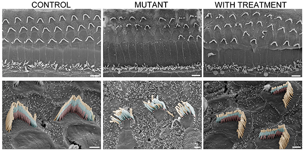 "Unaffected mice, at left, have sensory hair bundles organized in ""V"" formations with three rows of cilia (bottom left). This orderly structure falls apart in the mutant mice (middle column) but is restored after gene therapy treatment (right). Image: Gwenaëlle Géléoc and Artur Indzhykulian"