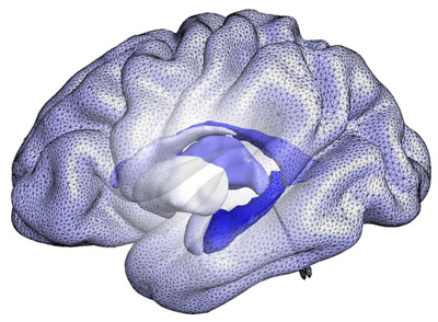 A computational model of brain structures that form the basis of BrainPrint, a system for representing the whole brain based on the shape, rather than the size, of structures. Image: Martin Reuter and Christian Wachinger/Martinos Center for Biomedical Imaging, Mass General
