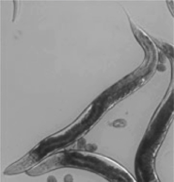 Black and white micrograph of long worms with round eggs