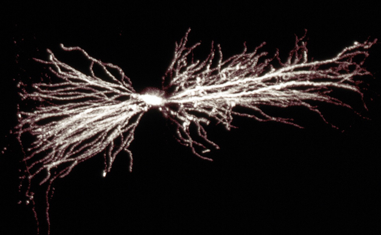 A hippocampal interneuron. Image: Biosciences Imaging Gp, Soton, Wellcome Trust via Creative Commons
