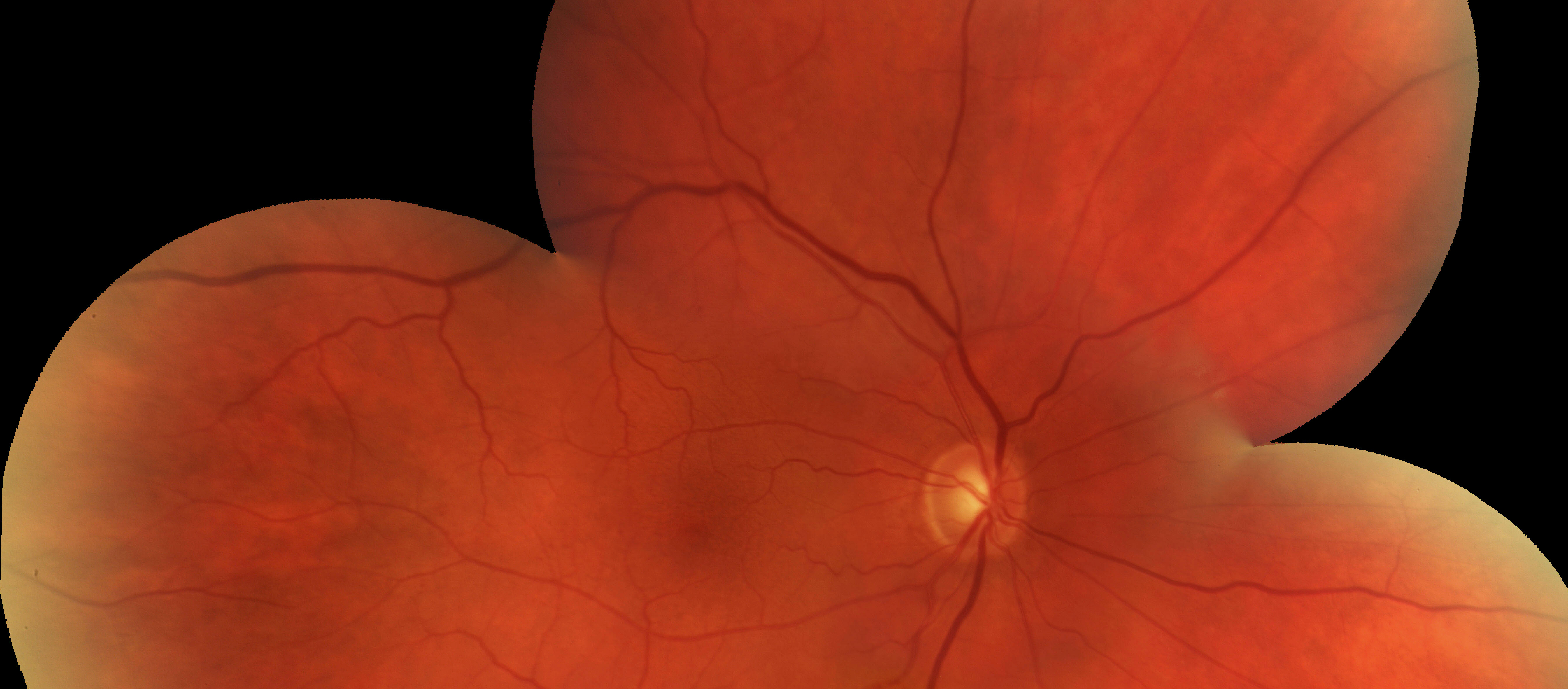 A photo of a retinal fundus showing no-to-mild diabetic retinopathy