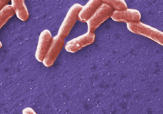 Micrograph with pill-shaped E. coli bacteria shown in pink against a purple background