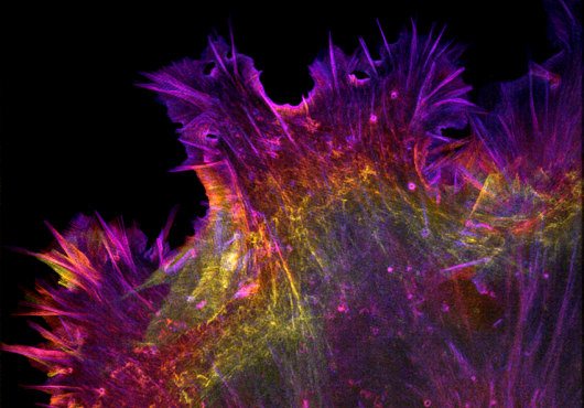 Spiky cell in pink, purple, orange and yellow