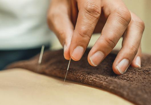 acupuncture needles being inserted in patient