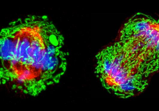 breast cancer cell dividing
