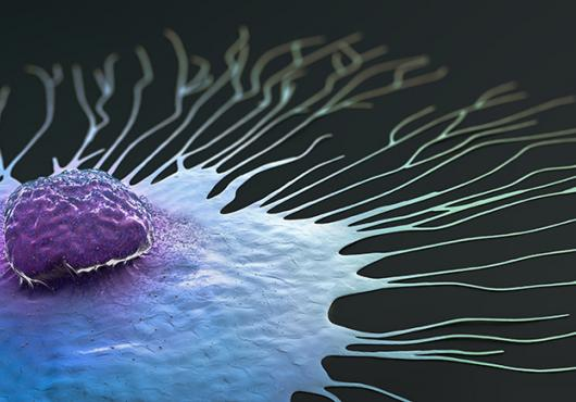 Digital illustration of a single breast cancer cell spreading