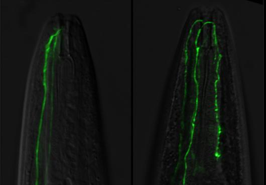 fluorescent neuron is longer than normal