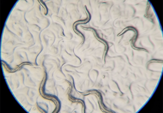 worms squiggle across a microscope slide