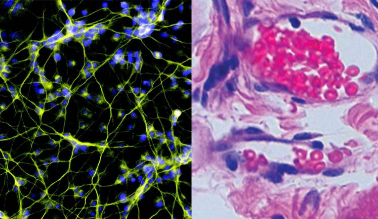Combined image of two micrographs. On left, web of yellow threads with blue nuclei against a black background. On right, swirls of pink and purple stained cells on a gray background.