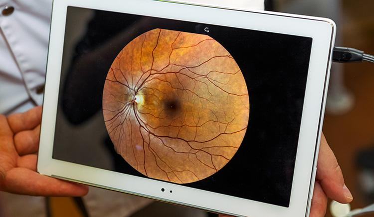 image of ocular funds being presented on an iPad