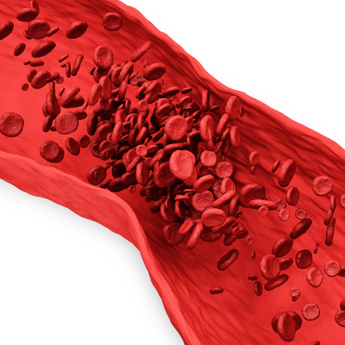 illustration of inside of a blood vessel with red blood cells clotting
