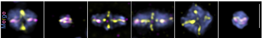 Six boxes show fluorescently dyed chromosomes aligned or misaligned during meiosis